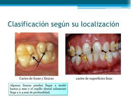 Caries de la superficie lisa
